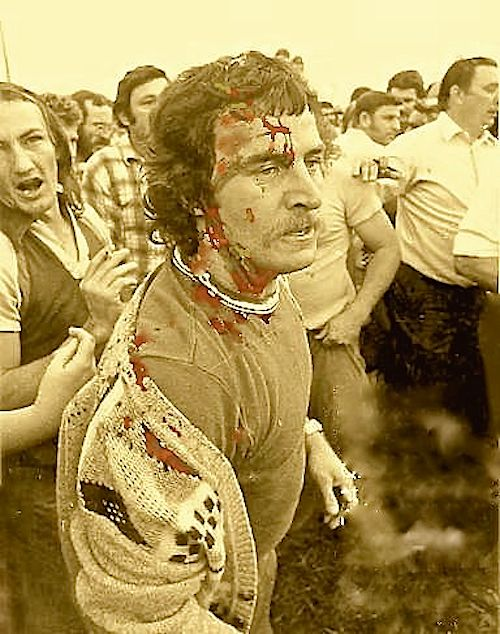 meatworker-bashed-by-snr-cnst-john-watt-in-secondary-boycott-of-live-cattle-1978-at-hamilton-wharf-brisbane